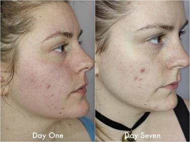 skin-side-2_fotor